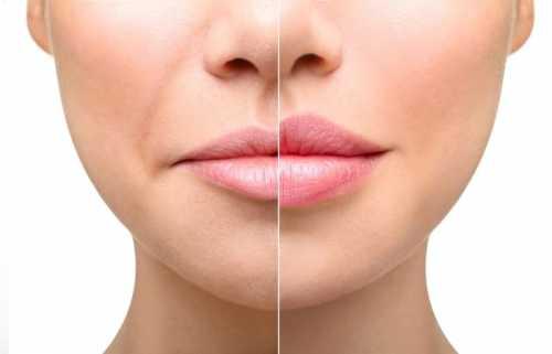 хирургическая хейлопластика губ: результаты, противопоказания, риски